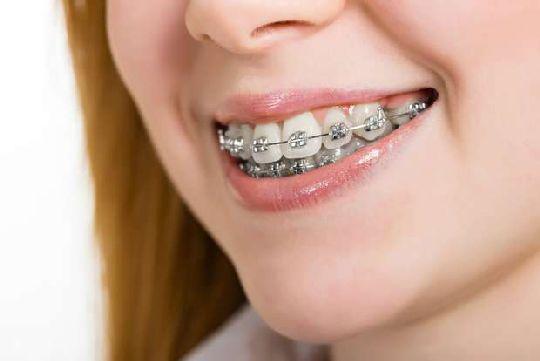 Devo Clarear Os Dentes Antes Ou Depois De Colocar Aparelho Dentcare
